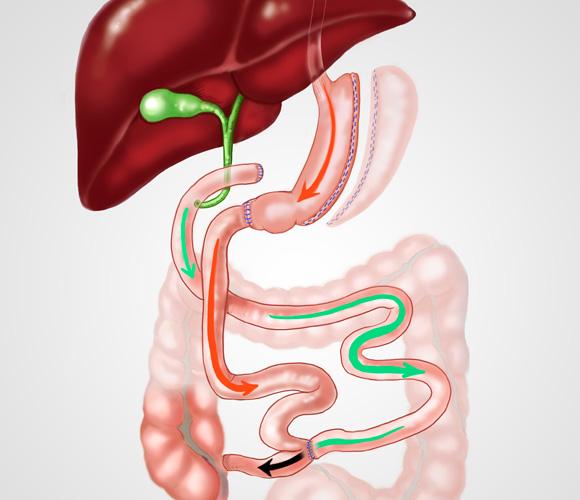 cancer bilio pancreatique