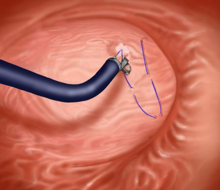 sleeve_gastrique_endoscopique_2
